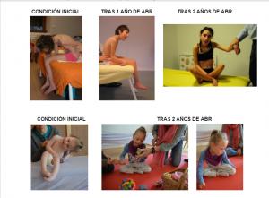 Parálisis Cerebral-Tetraparesia-Discapacidad-Familias Diversas-Blog