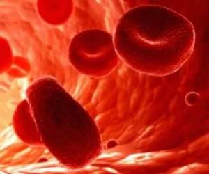 Anemia de Fanconi y Paraparesia Espástica Familiar. Una familia, dos enfermedades.