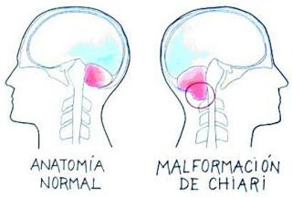 EERR. Malformación de Chiari. La historia de Noelia, una vida con cien complicaciones.