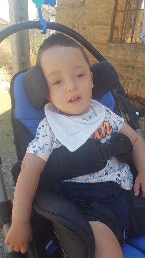Bebé con Síndrome Epiléptico