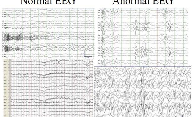 EERR. Encefalopatía epiléptica infantil temprana por mutación en SLC25A22 y Síndrome Lennox-Gastaut. La historia de Alejandro.
