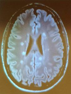 Lesiones esclerosis múltiple RM #TrabajEMos
