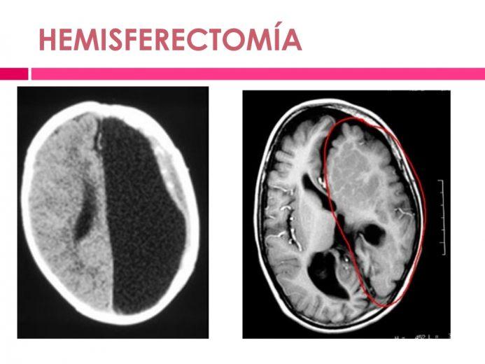 Una resonancia de un encéfalo en la que se ha extirpado un hemisferio. Compara dos imágenes, antes y después. Encefalitis de Rasmussen