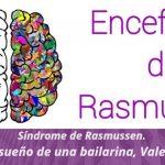 Síndrome de Rasmussen. El sueño de Valeria