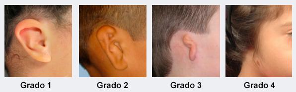 Imagen de los cuatro tipos de Microtia, con orejas casi inexsitentes o deformadas