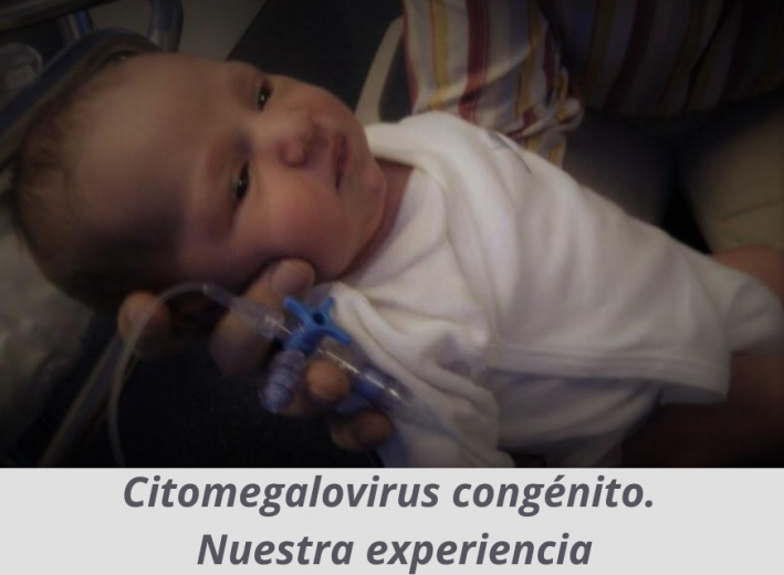 Citomegalovirus congénito. Nuestra experiencia