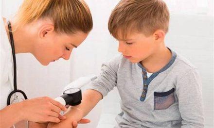 La importancia de revisar la piel de los peques después del verano